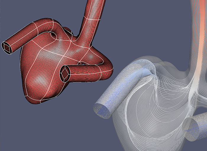 Medical - CFD Technologies